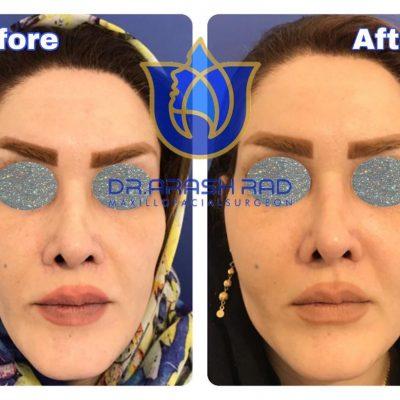 جراحی زاویه سازی صورت
