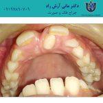 دندان اضافی