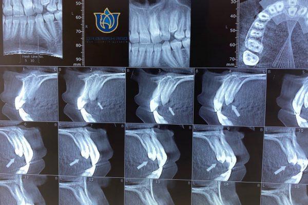 جراحی دندان های اضافی
