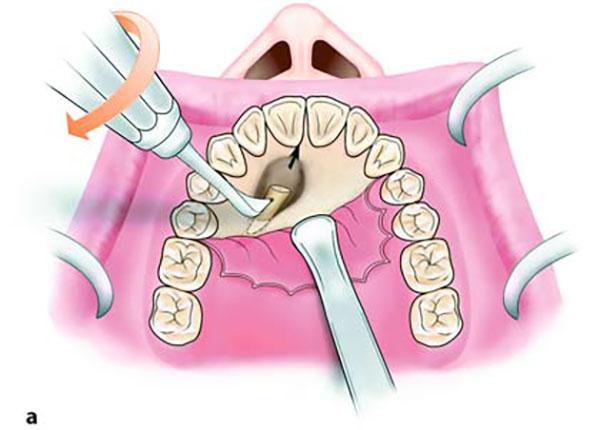 جراحی نهفتگی دندان در سقف دهان