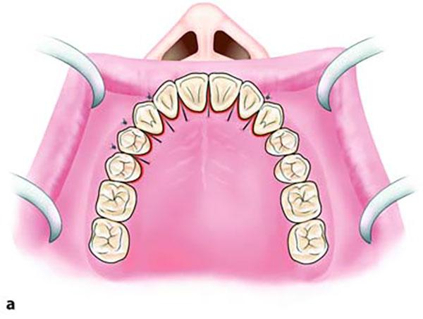 دندان نیش نهفته در سقف دهان