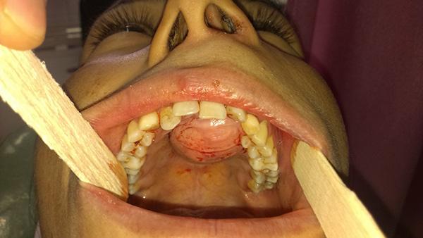 تومور داخل دهان