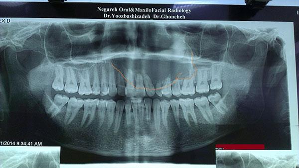 رادیوگرافی تومور دهانی
