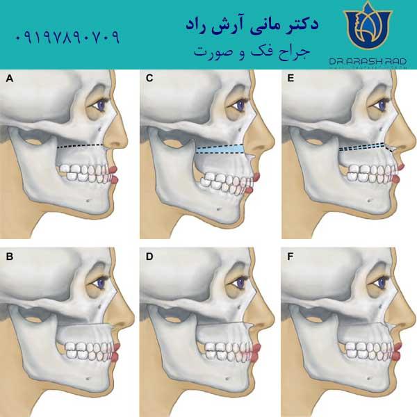 جراحی ارتوگناتیک فک بالا
